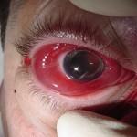 Podcast 007: Eye trauma with Dr Seb Rubinzstein-Dunlop